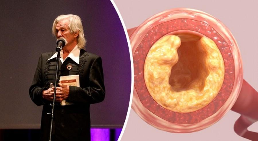 Dr. Papp Lajos: a koleszterincsökkentő gyógyszerek csendes gyilkosok