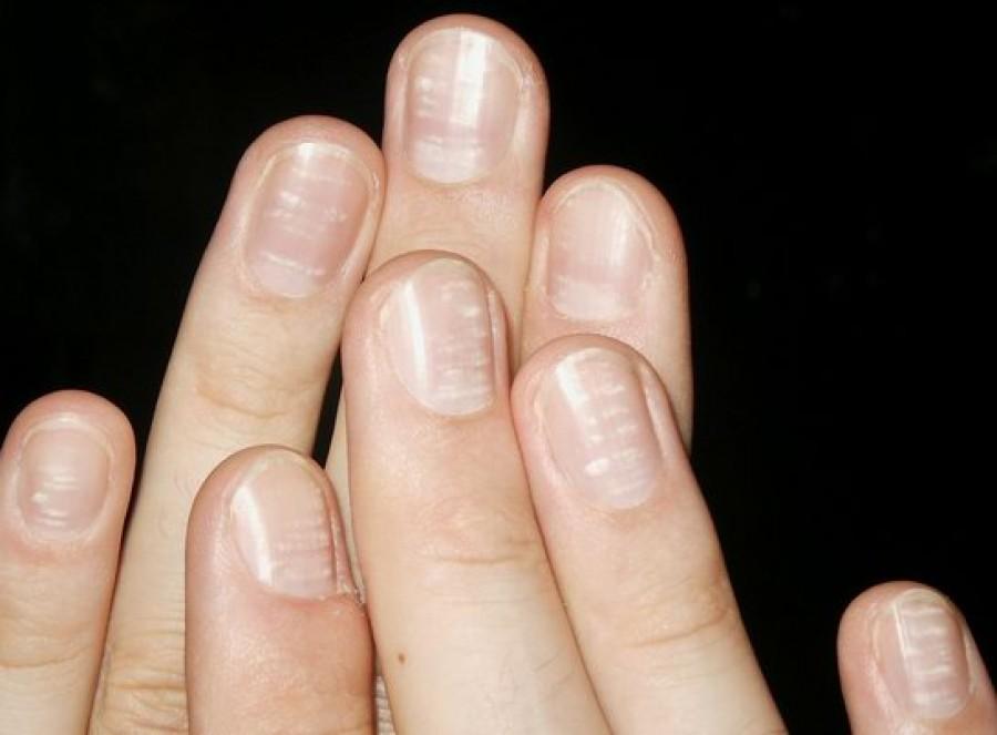 10 betegség, amit a körmeid már előre jeleznek