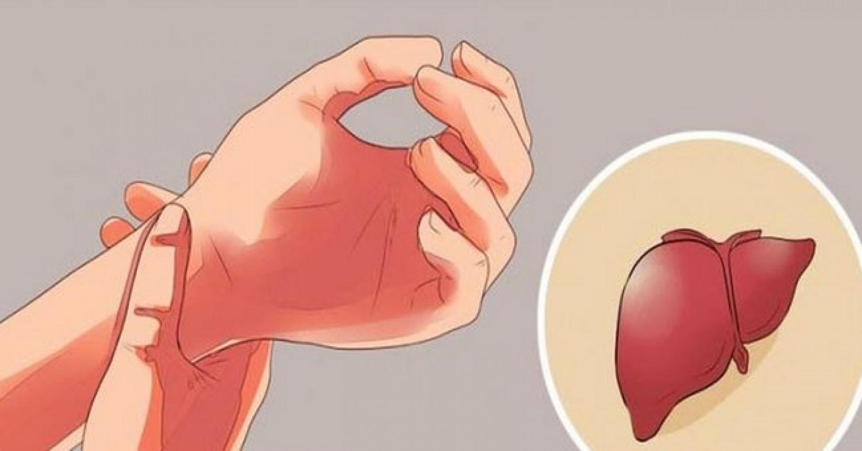A máj nem fáj, ha megbetegszik, de van 5 tünet, ami jelezheti a bajt
