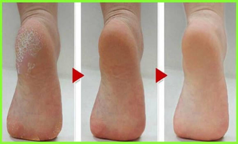 Ezt lehet tenni a bőr megvastagodása ellen