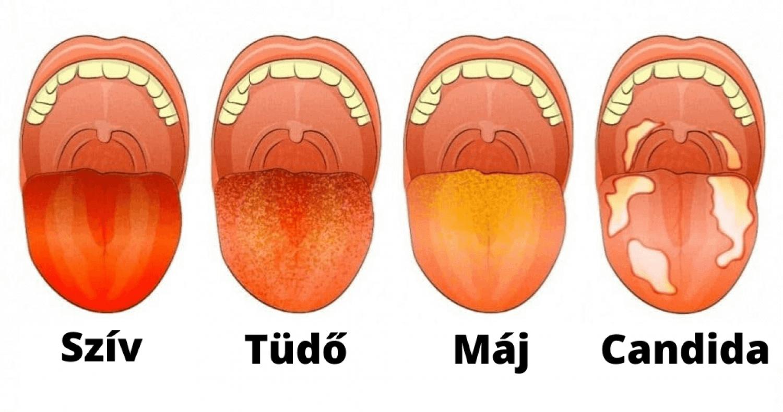 Nyújtsd ki a nyelved - fontos információkat ad az egészségedről