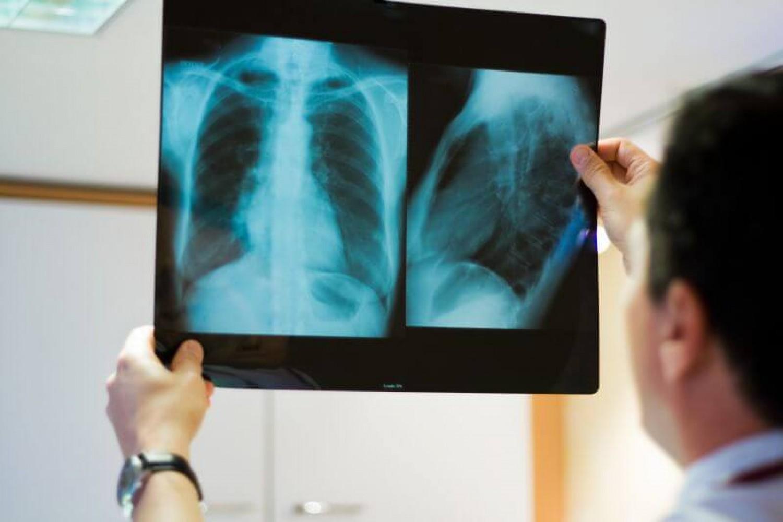 Mit tegyenek a légúti betegek a koronavírus járvány idején?