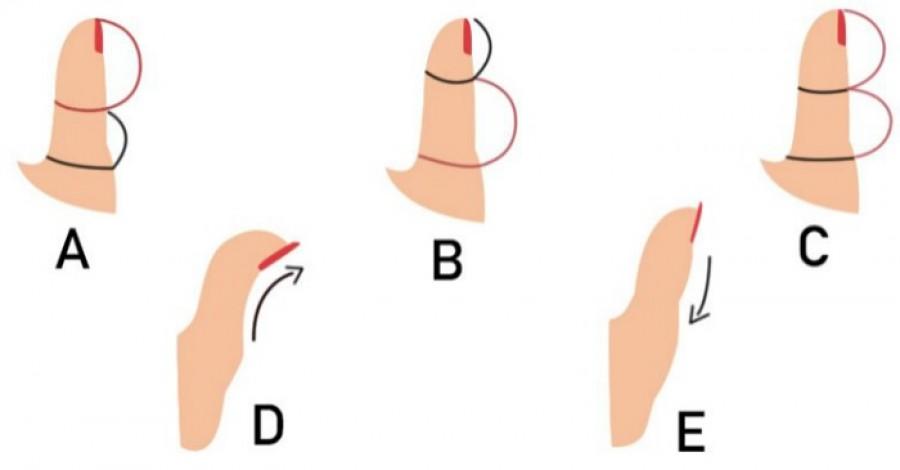 A hüvelykujjad formája rendkívül sok mindent elárul a személyiségedről