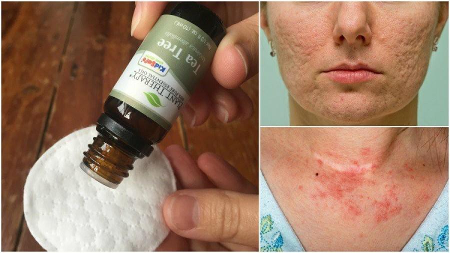 A teafaolaj 8 felhasználási módja, hogy meggyógyítsd a bőröd hibáit és betegségeit