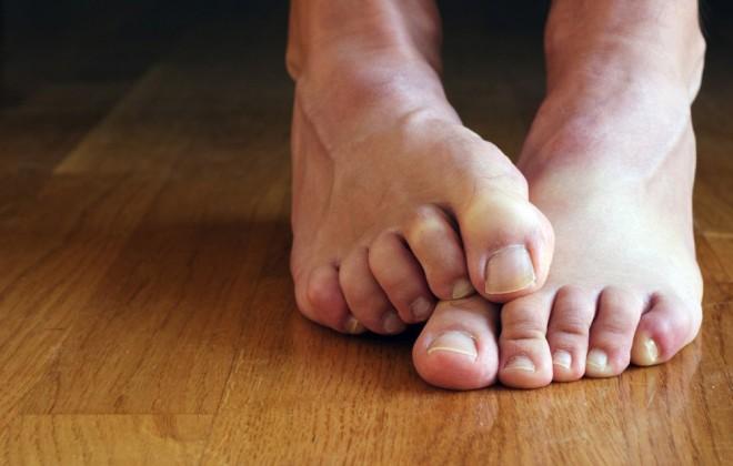 Fáj, érzékeny, vagy görcsölni szokott valamelyik a lábujjad? Nézd meg, milyen betegségre utal!