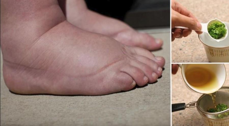 Rejtett jelek a lábon - Milyen betegségre utalnak?