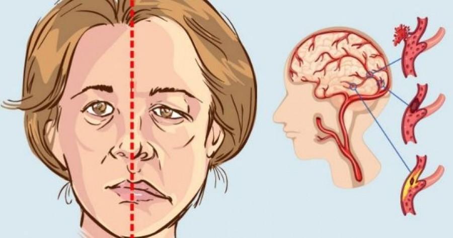 Kevésen tudják, hogy ezek növelik a stroke kialakulásának esélyét